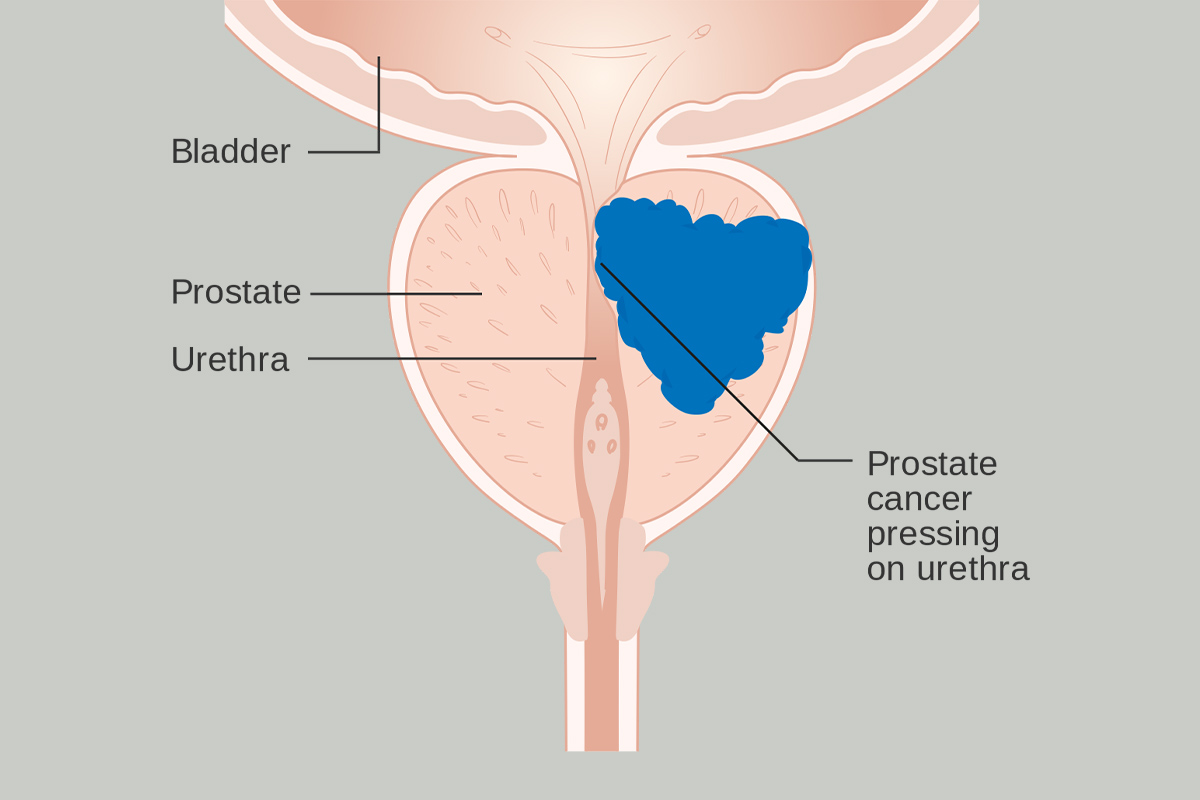 Herbal Remedies for Prostate Problems